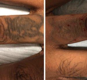 Tattoo Removal - Dolce Aesthetics NY